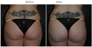 Brazilian Butt Lift New York City Patient 1036 - Butt augmentation NYC
