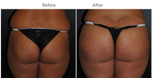 Brazilian Butt Lift New York City Patient 1037 - Butt augmentation NYC