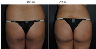 Brazilian Butt Lift New York City Patient 1038 - Butt augmentation NYC