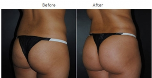 Brazilian Butt Lift New York City Patient 1041 - Butt Implants NYC
