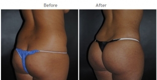 Brazilian Butt Lift New York City Patient 1043 - Butt augmentation NYC