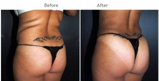 Brazilian Butt Lift New York City Patient 1023 - Butt augmentation NYC