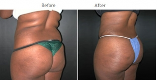 Brazilian Butt Lift New York City Patient 1027 - Buttocks augmentation NYC