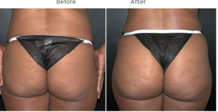 Brazilian Butt Lift New York City Patient 1028 - Buttocks augmentation NYC