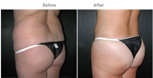 Brazilian Butt Lift New York City Patient 1029 - Butt augmentation NYC
