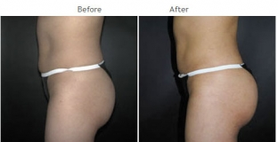 Brazilian Butt Lift New York City Patient 1030 - Butt implants NYC