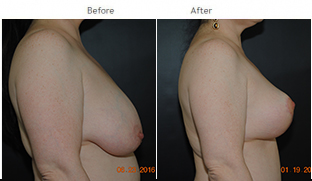 Breast Reduction NYC Case 1070