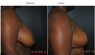 Breast Reduction NYC Case 1071