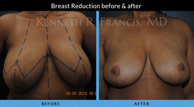 Breast Reduction New York City
