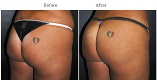Brazilian Butt Lift New York City Patient 1031 - Butt augmentation NYC