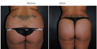 Brazilian Butt Lift New York City Patient 1034 - Butt augmentation NYC