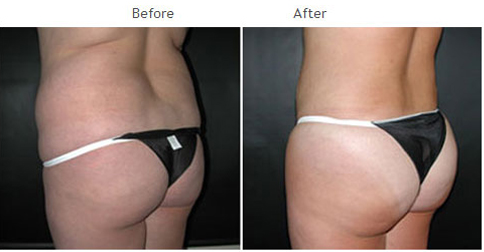 Brazilian butt lift NYC - Butt augmentation New York CIty