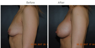 Breast Augmentation NYC Case 1065