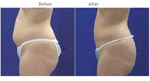 Liposuction NYC Case 1008