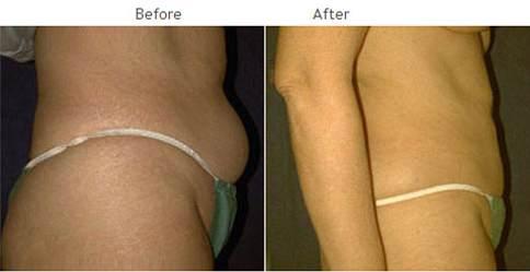 Liposuction NYC procedure - Laser lipo New York City