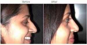 nose surgery nyc