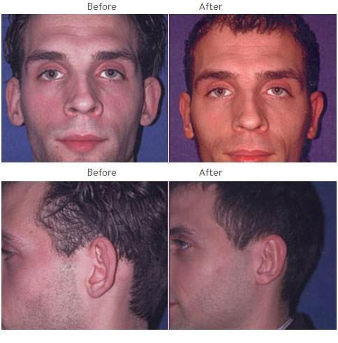 Otoplasty Facial-ear