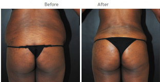 Brazilian Butt Lift New York City Patient 1044 - Butt augmentation NYC