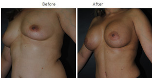 Breast Augmentation NYC Case 1064