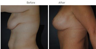 Breast Augmentation NYC Case 1044