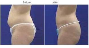 Liposuction New York City - Laser Lipo NYC Patient 1008