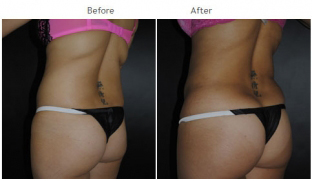 Liposuction New York City - Laser Liposuction Patient 1011