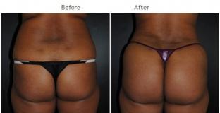 Brazilian Butt Lift New York City Patient Patient 1040