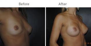 Breast Augmentation NYC Case 1043