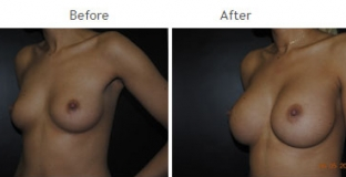 Breast Augmentation NYC Case 1046