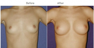 Breast Augmentation NYC Case 1047