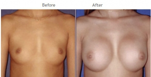Breast Augmentation NYC Case 1049