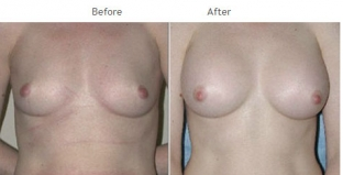 Breast Augmentation NYC Case 1050