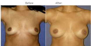 Breast Augmentation NYC Case 1052
