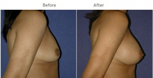 Breast Augmentation NYC Case 1053