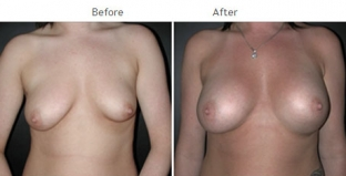 Breast Augmentation NYC Case 1055