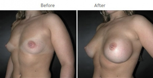 Breast Augmentation NYC Case 1056