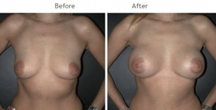 Breast Augmentation NYC Case 1058