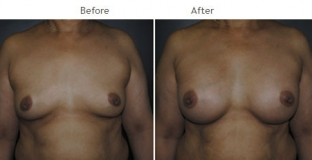 Breast Augmentation NYC Case 1059