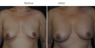Breast Augmentation NYC Case 1061