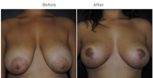 Breast Lift NYC Case 1065