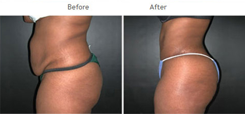 Tummy Tuck New York City - Abdominoplasty NYC