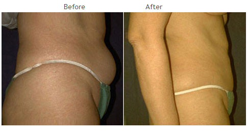 Liposuction NYC Case 1007
