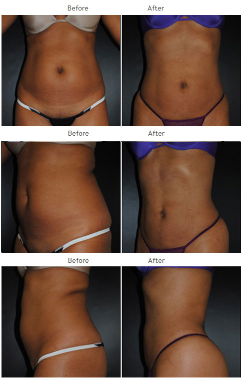 Liposuction NYC Case 1010