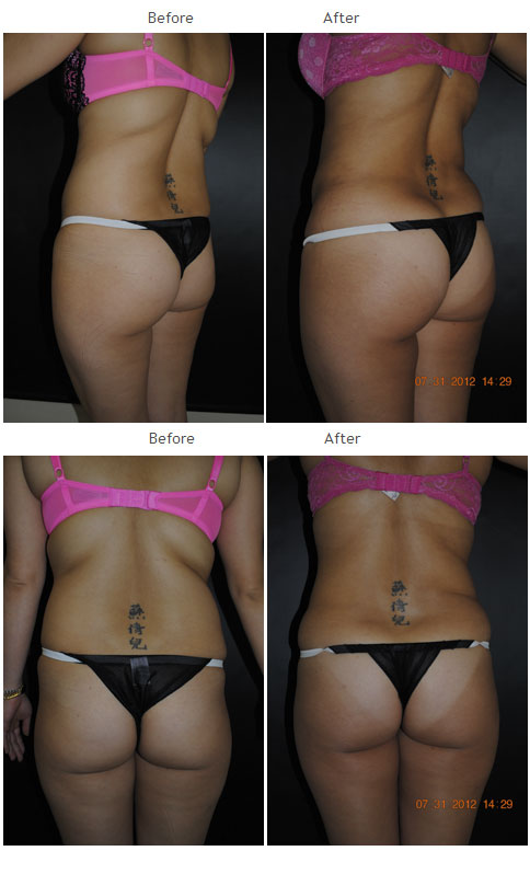 Liposuction NYC Case 1011