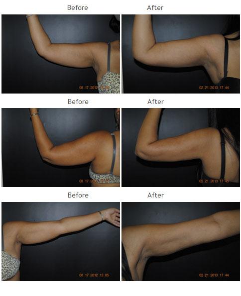 Arm Liposuction NYC Case 1012 - Kenneth R. Francis, MD