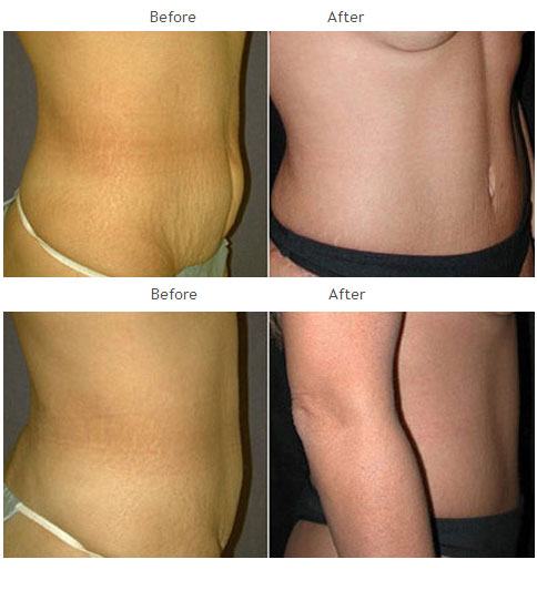 Case 1015 Tummy Tuck