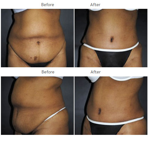 Case 1019 Tummy Tuck