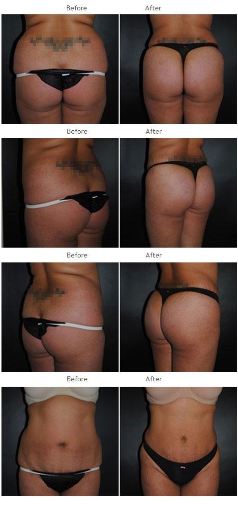 Brazilian Butt Lift NYC Case 1034
