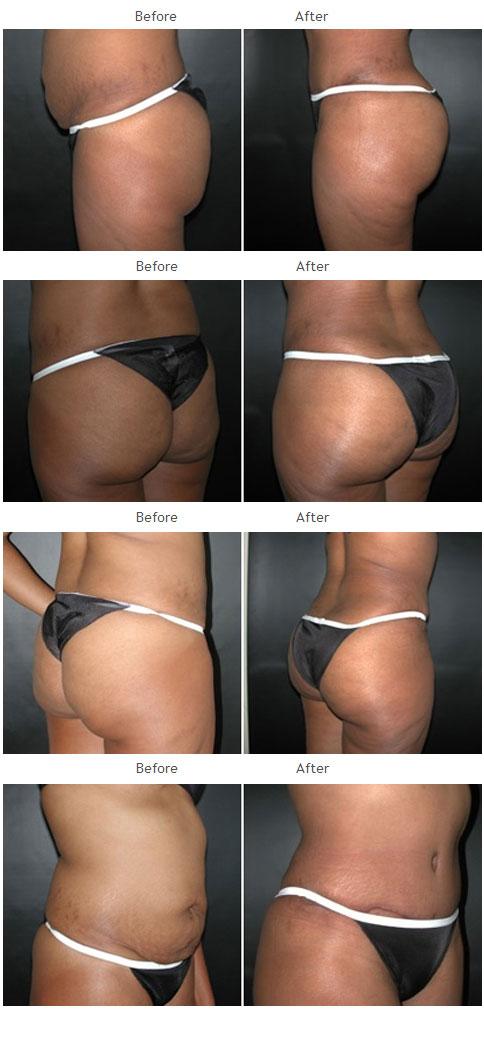 Brazilian Butt Lift NYC Case 1035