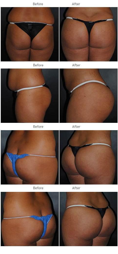 Brazilian Butt Lift NYC Case 1037